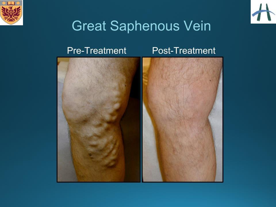 psoriasis arthritis therapie cosentyx