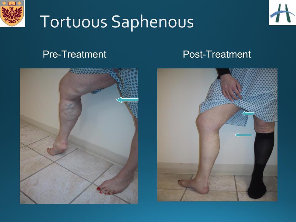 prostatitis symptome der krankheit abakterielle chronische